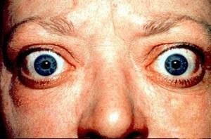 Базедова болест