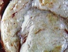 Бучка в гърдата – болка, симптоми и снимки