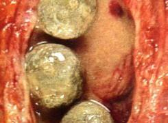 Камъни в пикочния мехур – лечение, причини и снимки