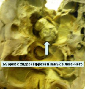 Оксалати в урината