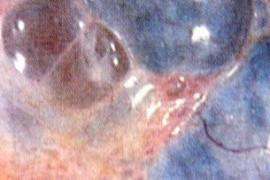 Поликистозни яйчници – лечение, симптоми, признаци