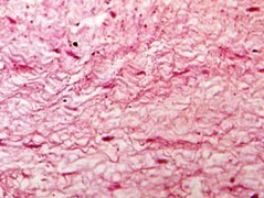 Претибиален микседем – симптоми и лечение