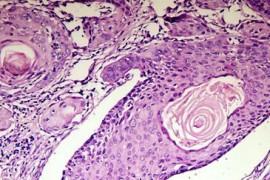 Рак на белия дроб – Синдром на Pancoast-Tobias