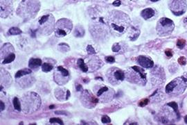 Метастатични тумори в яйчника – синдром на Крукенберг