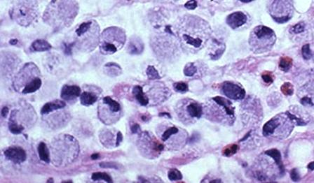 Тумор на яйчника (Синдром на Крукенберг)