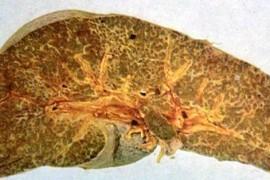 Муковисцидоза – лечение и симптоми