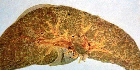 билиарна цироза при муковисцидоза