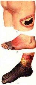 гангрена на краката