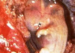 Извънматочна бременност