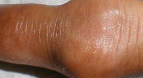 Подагра – симптоми и диета
