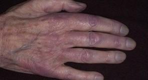 Акроцианоза – причини, симптоми и лечение