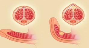 Пейрони – лечение и симптоми