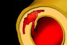 Дисекация на аортата – причини, симптоми, лечение