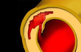 Дисекация на аортата