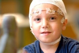Епилепсия при деца