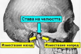 Изкълчване на челюстта