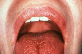 Синдром на Сьогрен – симптоми и лечение