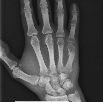 Счупване на дланта