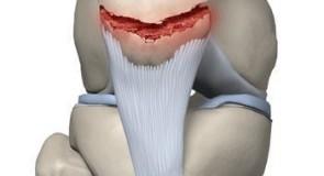 Счупване на капачето на коляното