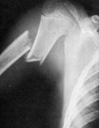 Счупване на раменната кост