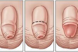 Фимоза – причини и операция