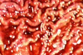 Хипертрофичен гастрит – симптоми и лечение