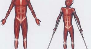 Прогресивна мускулна дистрофия – Болест на Дюшен