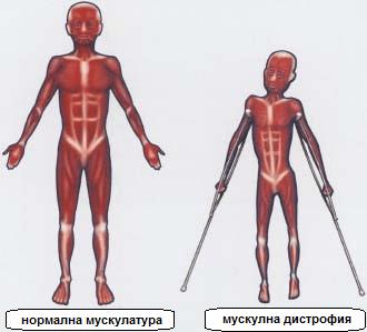 мускулна дистрофия