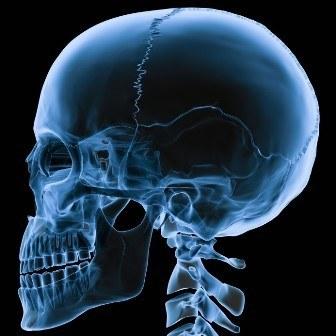 счупен череп