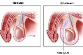 Хидроцеле – симптоми и лечение