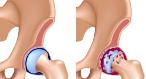 Лечение на коксартроза