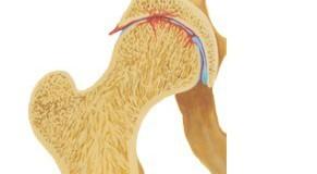 Коксартроза – причини и симптоми