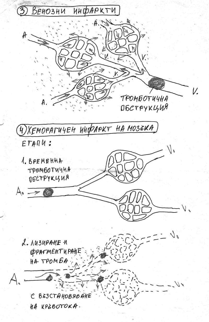 Хеморагичен инфаркт на яйчник и мозък