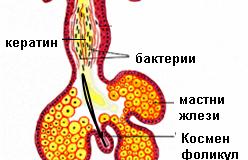 Акне – лечение и причини