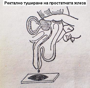 Stimulera Prostatan
