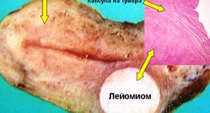 Миома – лечение и симптоми