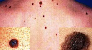 Бенки и меланом – премахване