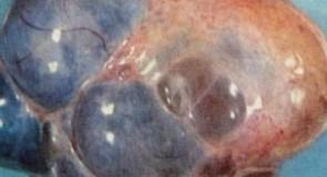 Тумори на яйчниците
