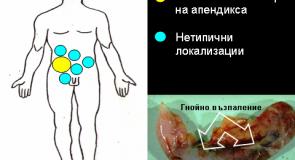 Апендицит – симптоми и лечение