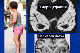 Хидроцефалия – симптоми и лечение