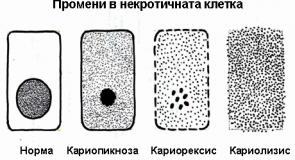 Некроза