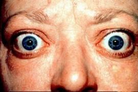 Базедова болест (Тиреотоксикоза) – причини за възникване