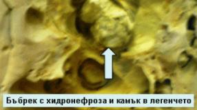 Оксалати в урината – лечение и симптоми