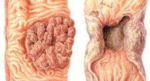 Рак на дебелото черво – симптоми и лечение