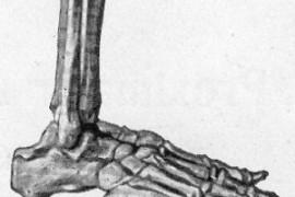 Шипове в петата – симптоми и лечение