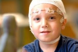 Епилепсия при деца – симптоми, лечение и лекарства