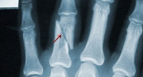 Счупване на пръстите