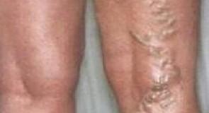 Тромбофлебит – причини, симптоми, лечение