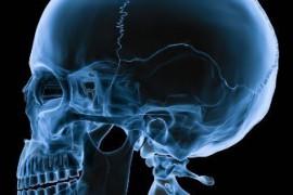 Счупване на черепа