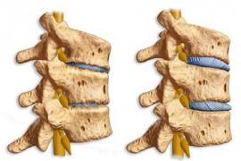 Спондилоартроза – симптоми и лечение